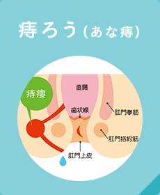 痔ろう(あな痔)